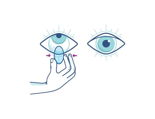 Apretando suavemente el lente de contacto para sacarselo