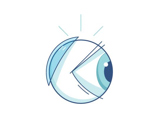 e61ae04597 Mitos sobre lentes de contacto | ACUVUE®